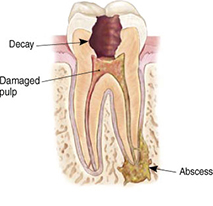 root canals explained 3