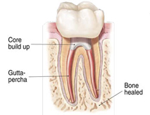root canals explained 6