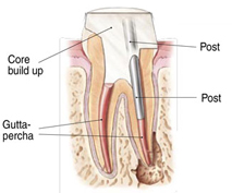 root canals explained 7
